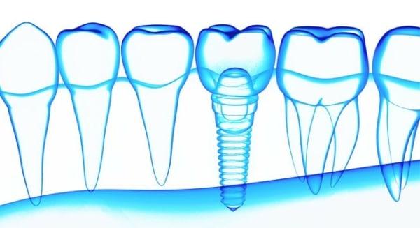Implantes dentales de Gama Super Premium