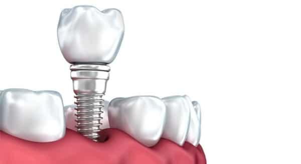 Implantes dentales de Gama