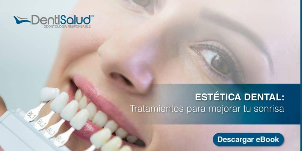 Ebook Estética Dental