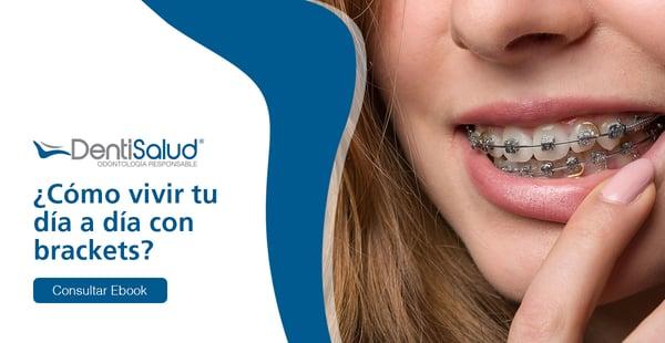 ¿Cómo vivir con ortodoncia?