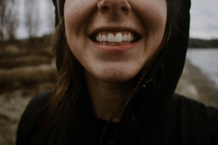 diseño-sonrisa-bruximo