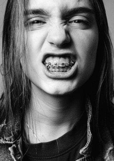 ortodoncia-metalica-diseño-sonrisa