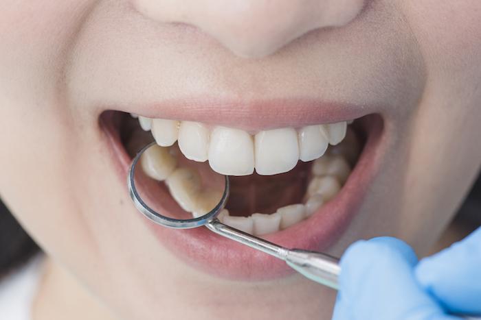 Básicos de la salud oral: ¿Cómo eliminar el sarro dental?